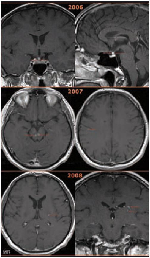 Postižení CNS u pacienta s Erdheimovou-Chesterovou chorobou zobrazené na MR mozku v T1 vážené sekvenci po aplikaci kontrastní látky.  2006: koronární (vlevo) a sagitální (vpravo) rovina. Postkontrastně se sytící ložiskové zbytnění stopky hypofýzy na 4–5 mm u pacienta s příznaky diabetu insipidu. (Normální stopka hypofýzy se nálevkovitě zužuje, v úrovni chiasma opticum měří kolem 3 mm a při vyústění do hypofýzy jen 1– 2 mm [3].) Byla provedena endoskopická stereotakticky navigovaná parciální resekce stopky hypofýzy, dle histologického vyšetření byl však nález nespecifický a odpovídal lymfoidní zánětlivé infiltraci v oblasti hypofýzy. Absenci morfologie typické pro Erdheimovu-Chesterovu chorobu (pěnité makrofágy, mnohojaderné obrovské buňky Toutonóvy, fibroblastické pozadí) popisují i jiní autoři a její příčina není dosud objasněna. Analogii lze hledat u pacientů s neurodegenerativními projevy histiocytózy z Langerhansových buněk, u nichž byly i sekčně nalezeny pouze lymfocytární infiltráty. Bylo spekulováno, že celé neurodegenerativní poškození může mít podklad maligní chorobou indukované degenerativní změny. Je tedy možné, že infiltrace CNS pěnitými histiocyty provází natolik intenzivní zánětlivá reakce, že cílené biopsie nemusí diagnózu Erdheimovy-Chesterovy choroby odhalit, a někteří autoři proto doporučují při diferenciální diagnostice infiltrace stopky hypofýzy vždy vyšetření dolních končetin, zda nejsou přítomny znaky charakteristické pro ECD [3,11,12].  2007: transverzální roviny. Vlevo patrná nová ložiska v mesencephalu s postkontrastně se sytícím centrem a cirkulárním jemným lemem kolaterálního edému, vpravo pak tečkovité ložisko subkortikálně.  2008: transversální (vlevo) a koronární (vpravo) rovina. Nová ložiska v oblasti levého zadního raménka kapsuly interny. U pacienta se projevila nová neurologická symptomatika ve formě dysartrie středního stupně, reflexologická převaha na pravé dolní končetině a porucha alternujících pohybů levé ruky.