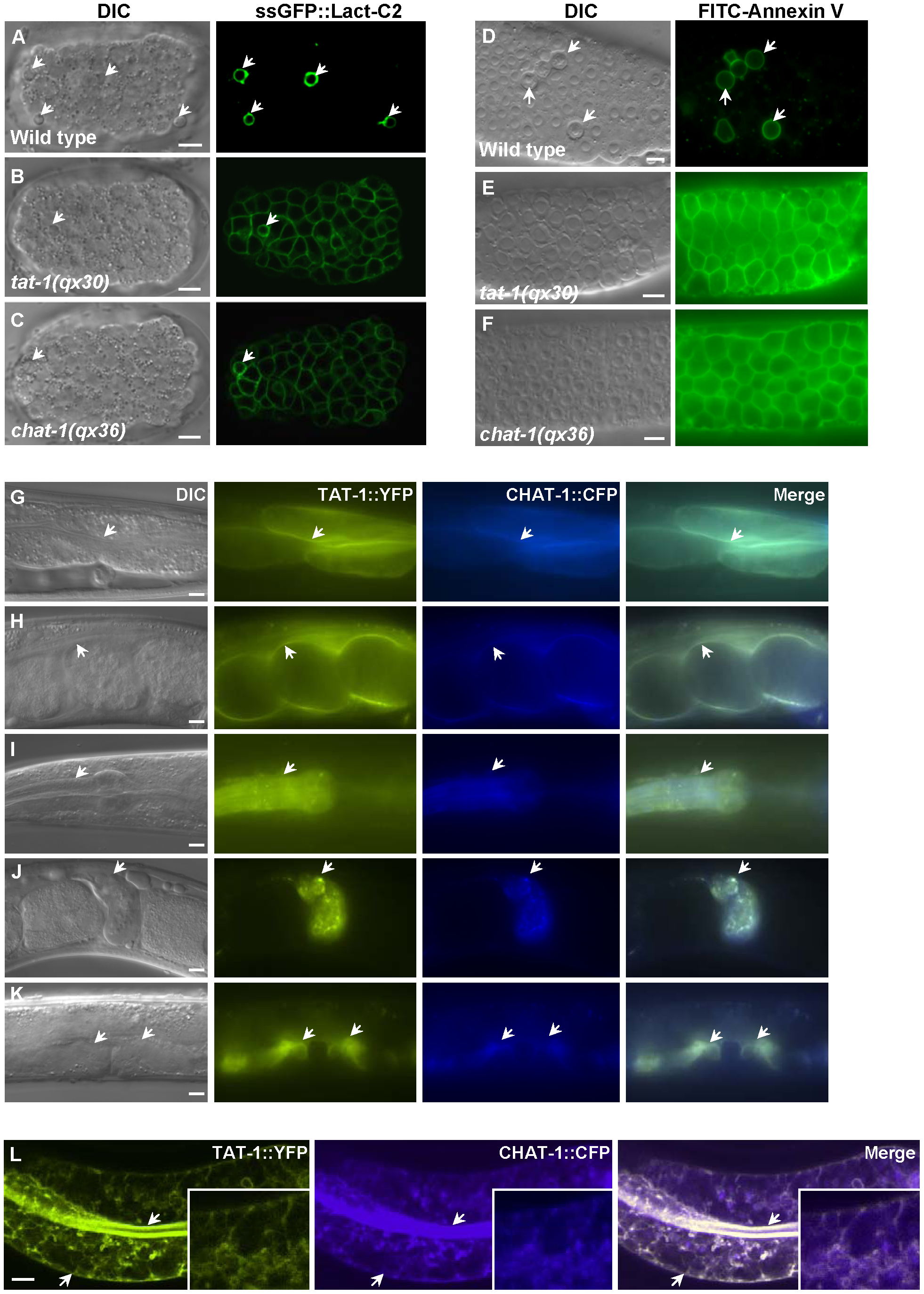 CHAT-1 and TAT-1 regulate plasma membrane PS asymmetry and express in the same tissues.