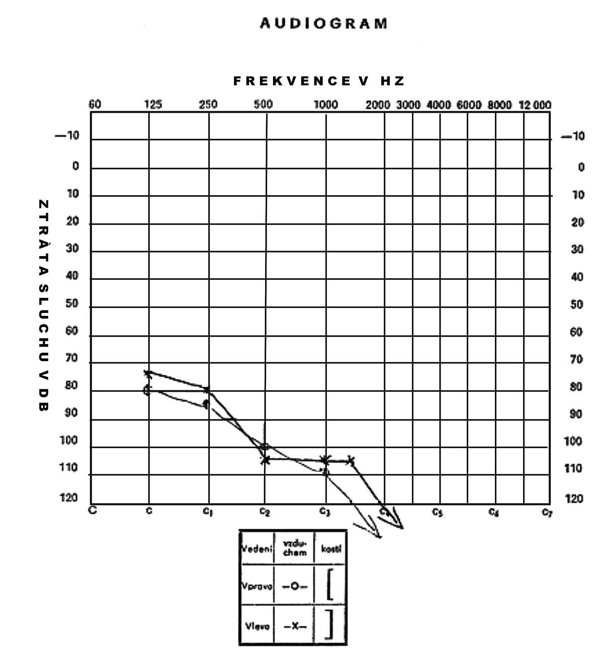 Audiogram 3. pacienta ve věku 3 let s nálezem velmi těžké ztráty sluchu