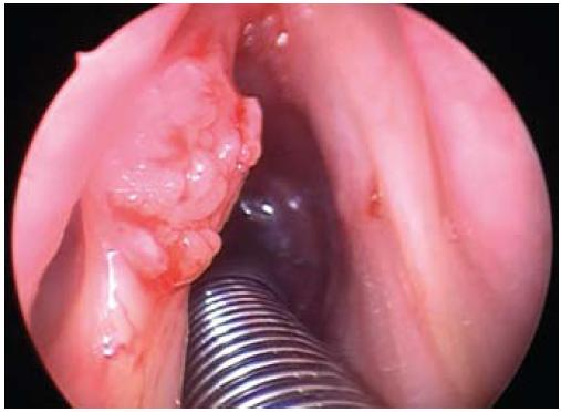 Karcinom levé hlasivky stadia T1. Fig. 2. T1 carcinoma of the left vocal cord.