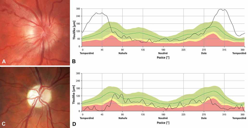 Nálezy na terčích zrakového nervu u dvou pacientů s LHON. Barevná fotografie papily zrakového nervu pravého oka 20letého muže s m.11778G>A mutací v době akutní fáze onemocnění, lze pozorovat pseudoedém a vinuté, rozšířené cévy při okraji (A); měření tloušťky vrstvy nervových vláken (RNFL) peripapilárně dokládá zvýšení nad normativní databázi (zelené pásmo) temporálně, zatímco nazálně a nahoře lze již detekovat počínající atrofii (žluté a červené pásmo) (B). Barevná fotografie papily zrakového nervu pravého oka 26letého muže s m.11778G>A 6 let po manifestaci onemocnění, terč je výrazně bledý, což odpovídá těžké atrofii (C); měření RNFL dokládá úbytek této vrstvy, hodnoty jsou převážně patologické nebo hraniční (červené a žluté pásmo), dále dochází ke ztrátě charakteristické dvojitě vlnité kontury křivky (zelená linie) (D). Fig. 3. Optic nerve heads findings in two patients with LHON. Colour photograph of the right optic disc of a 20-year-old male with m.11778G>A mutation in acute disease stage showing pseudoedema, telangiectasia and increased tortuosity of retinal vessels (A); peripapillary retinal nerve fibre layer measurements show increased thickness above the normative database (green band) temporally while in the nasal and superior quadrants there is already a RNFL thickness reduction (yellow and red band) (B). Colour photograph of the right optic nerve head of a 26-year-old male with m.11778G>A mutation 6 years after the disease onset, the disc is pale corresponding to severe atrophy (C); RNFL measurements confirm thinning, most values are within the pathological or borderline range (red and yellow band), the typical normal pattern of RNFL striations is absent (green line) (D).