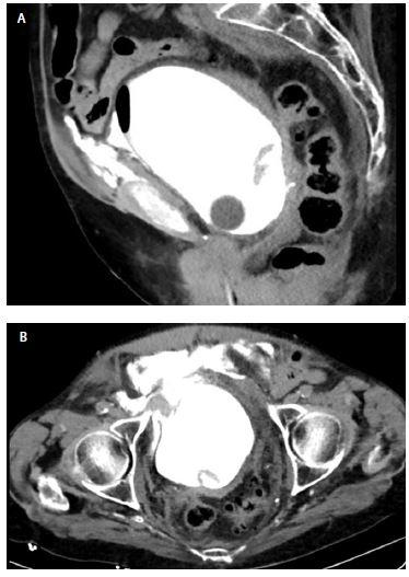 A, B CT cystografie s velkou náplní, sagitální řez (3A) a axiální (3B) je patrný extraperitoneální únik kontrastní látky<br> Fig. 3. A, B CT cystography on further filling of the bladder, sagittal (3A) and axial (3B) view extraperitoneal leakage of contrast is demonstrated