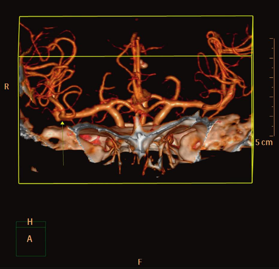 Angio CT vyšetření mozku pacientky
