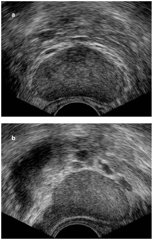 Obr. 1a,b. Transrektální sonografie prostaty s normálním nálezem u 18letého muže s vrozeným hypogonadismem před zahájením substituční léčby testosteronem, příčná (a) a podélná (b) rovina