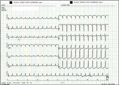 EKG záznam po elektrické kardioverzi.
