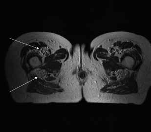T2 váženie – transverzálny rez v úrovni proximálnej tretiny stehna.