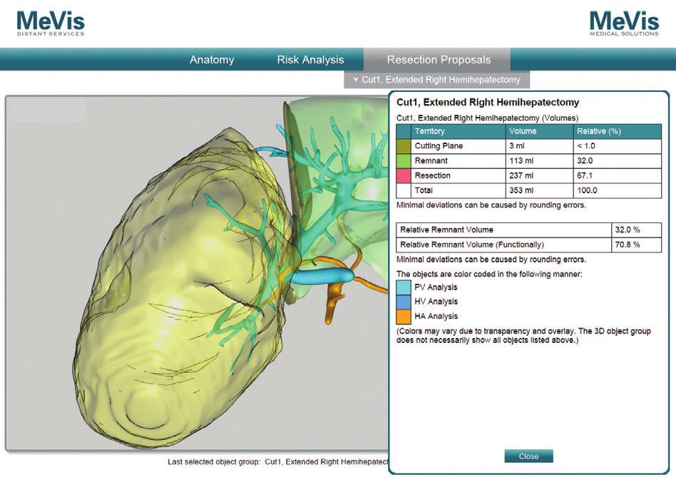 MeVis resekčný návrh a volumetria remnantu, pacient č. 5 Fig. 8: Mevis resection proposal and remnant volumetric analysis, patient No. 5