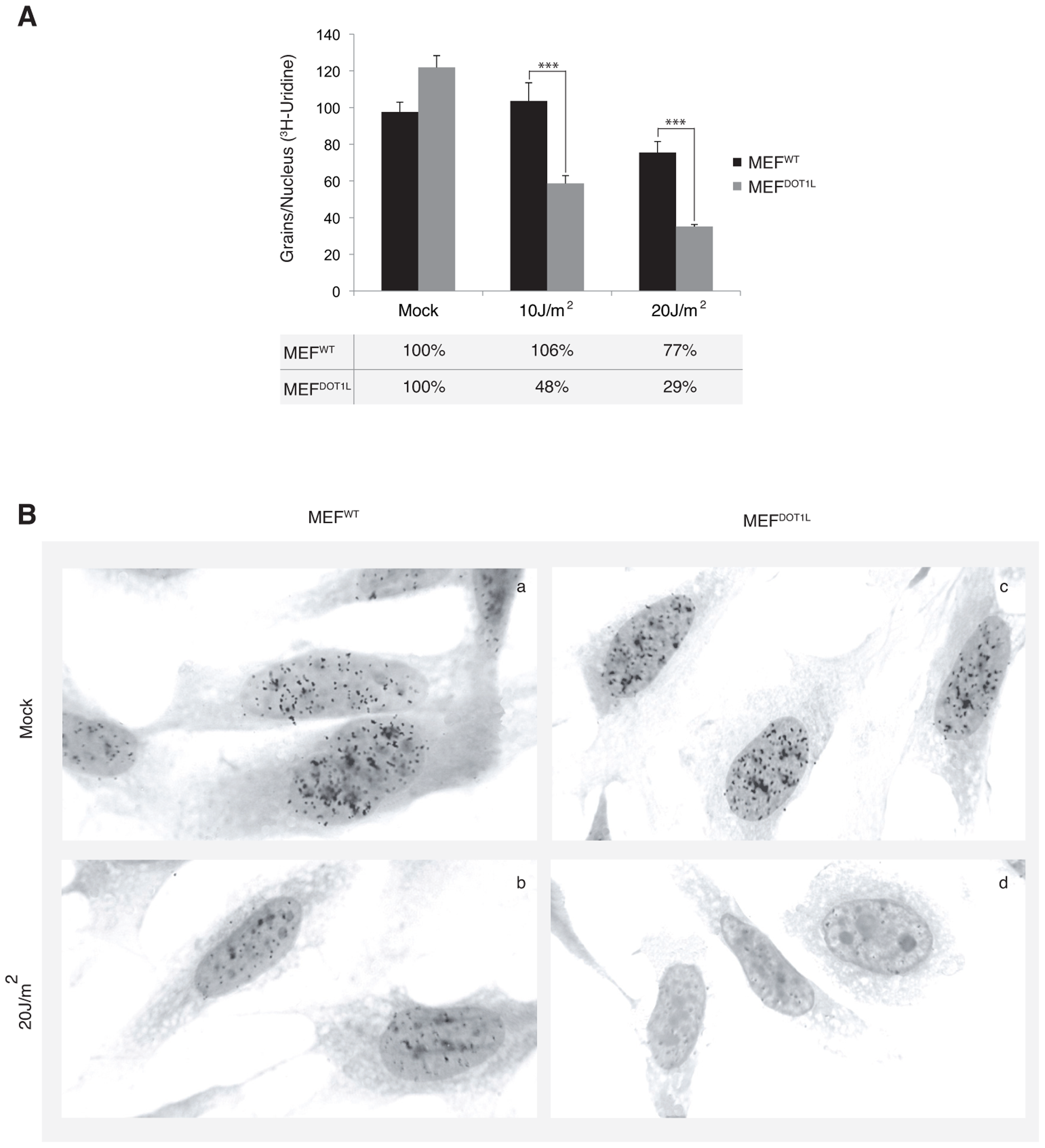 Deficient transcription recovery after UV irradiation in the absence of DOT1L.