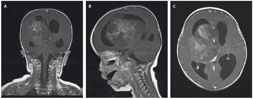 A, B, C Magnetická rezonance - koronární, sagitální a axiální T1 vážené postkontrastní obrazy ukazující objemnou nehomogenně se sytící expanzi zasahující do třetí a pravé postranní komory se známkami akutního hydrocephalu Image 1 A, B, C Magnetic resonance – coronary, sagittal and axial  contrast-enhanced T1-weighted images showing a large non-homogenously enhancing lesion spreading into the third and forth ventricle, signs of acute hydrocephalus are visible