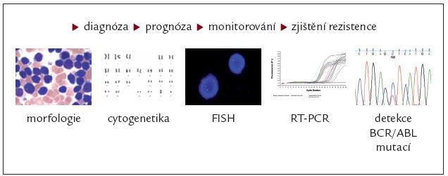 Sledování nemocných s CML léčených inhibitory tyrozinových kináz.