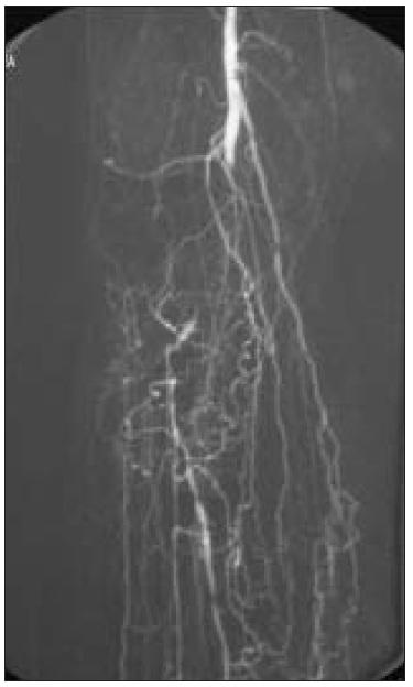 Angiografie – fragmentace bércového řečiště, žádná bércová tepna.