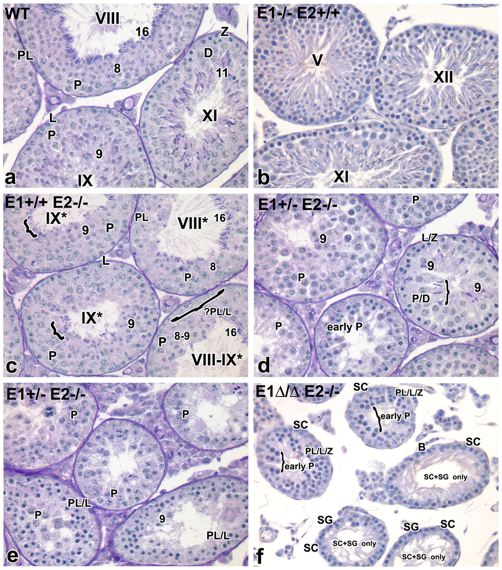 Additional E-type cyclin deficiency causes progressive loss of advanced spermatogenic cells.