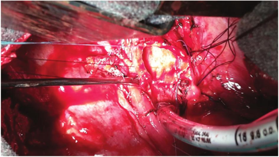 Selektivní intubace z operačního pole, stav po resekci kariny Fig. 4: Selective intubation from the operation field; status after resection of carina