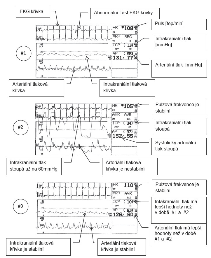 Pulmonární laváž a následné odsávání # 1 Hodnoty ICP, AP a HR před pulmonární laváží. Všechny hodnoty až na malou epizodu na EKG křivce jsou prakticky normální. # 2 Hodnoty při plicním odsávání, zásadně roste intrakraniální a systolický tlak. Pulzová frekvence je stejně zvýšená jako před laváží. #3 Hodnoty a křivky naměřené pět minut po laváži a odsávání. AP je normalizované, HR je stabilní a hodnoty ICP jsou lepší než před laváží.