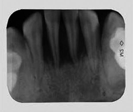 Intraorální rtg 2-2 ukazuje extenzivní ztrátu alveolární kosti.
