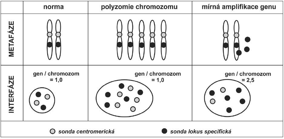 Odlišení polyzomie chromozomu od mírného stupně amplifikace genu na tomto chromozomu lokalizovaném. Kombinace sondy centromerické (značené například fluorochromem poskytujícím zelenou fluorescenci) a lokus specifické (značené například fluorochromem poskytujícím červenou fluorescenci) umožňuje odlišit zvýšený počet chromozomu od zvýšeného počtu kopií genu, lokalizovaném na tomto chromozomu. Odlišení by nebylo možné, pokud by ve směsi sond nebyla přítomna sonda centromerická. Pro dokreslení významu odlišení změn je uveden výsledný poměr počtu signálů genu ku počtu signálů pro centromeru chromozomu v jádře buňky.