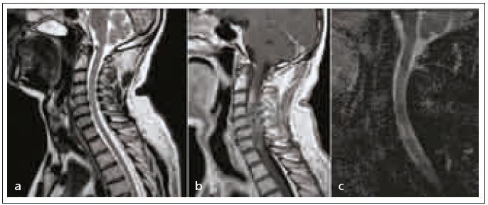 Vstupní vyšetření T2 sagitální sekvence, při zpětném hodnocení s diskrétními známkami postižení míchy v rozsahu C3–6 (a), postkontrastní T1 sagitálně se sycením v rozsahu postižení, vzhledem k dynamice změn potvrzuje dg. myelitis (b), ADC mapa bez známek změn svědčící pro ischemické postižení míchy, bez poklesu hodnot signálu při měření v místě sycení (c).