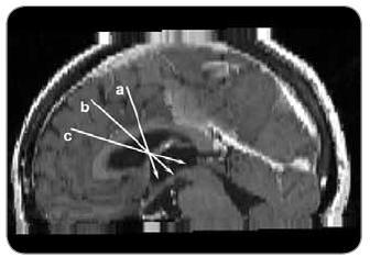 Směrnice trajektorií pro neuroendoskopickou operaci v jednotlivých částech II. komory. a) přední část II. komory, b) střední část III . komory, c) zadní část II. komory.