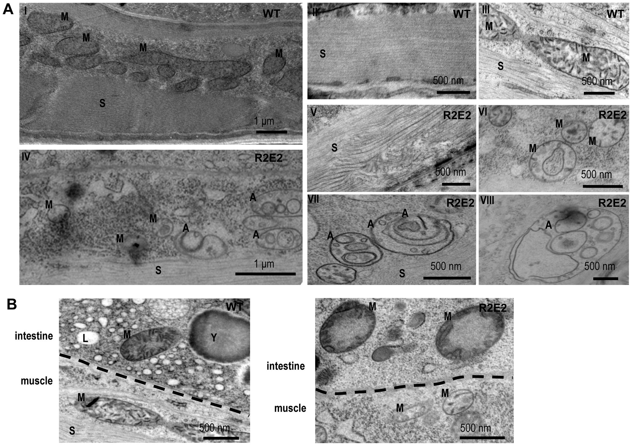 Transmission Electron Microscope (TEM) analysis reveal that mitochondrial defects and induction of autophagy are prominent features of prion domain–induced pathology.