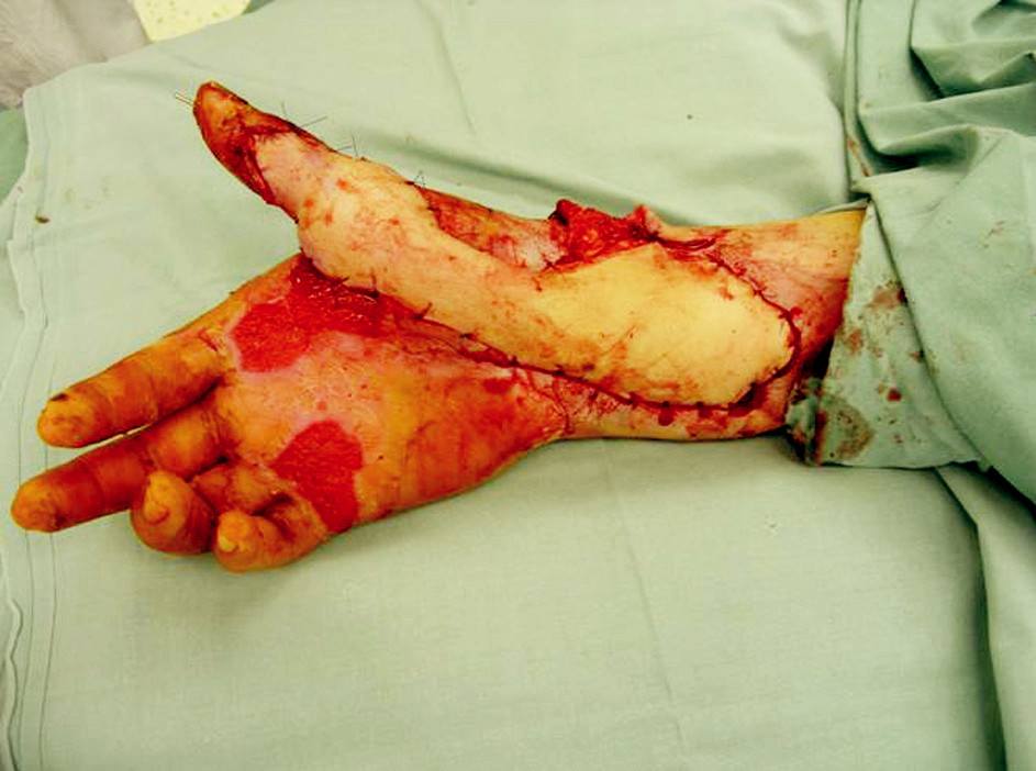 Microsurgically transferred parascapular fasciocutaneous flap to the soft tissues defect of right upper extremity