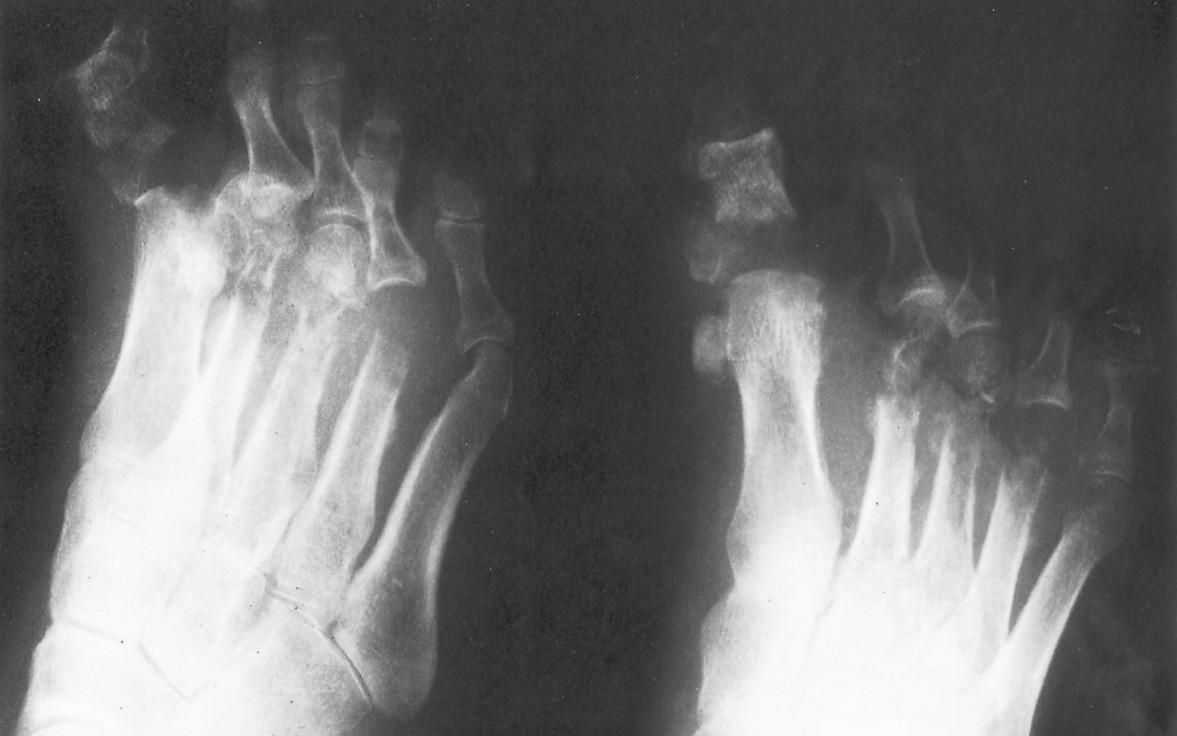 Obr. 1a, 1b. Nekrotizující infekce u mladé diabetičky. Gangréna prstů s osteomyelitidou všech metatarzů na PDK. Mikroangiopatie, neuropatie Fig. 1a, 1b. Necrotizing infections in a young diabetic female patient. Gangrene of toes with osteomyelitis of all metatarsal bones of the right lower extremity. Microangiopathy, neuropathy