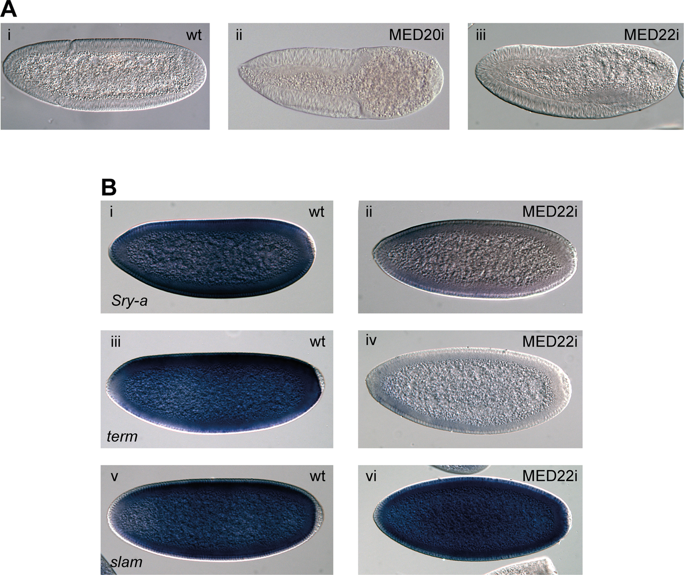 The Mediator subunits MED20 and MED22 phenocopy P-TEFb in early embryos.