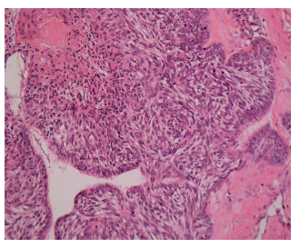 Úsek BCC s metatypickým (bazoskvamóznym) vzhľadom. Na periférii (vpravo) je naznačené abortívne palisádovatenie bazaloidných buniek, vľavo su viditeľne skvamózne partie (H&E, zväčšenie 120x).