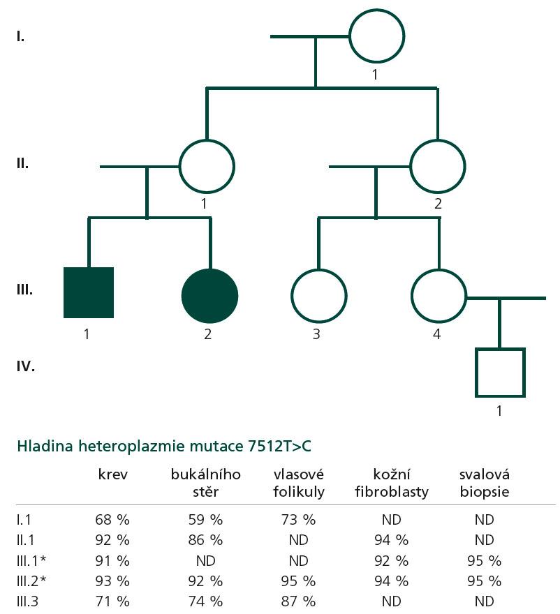 Rodokmen. Mutace 7512T>C byla detekována u obou probandů (III.1., III.2), u jejich matky (II.1), babičky (I.1) a sestřenice (III.3).
