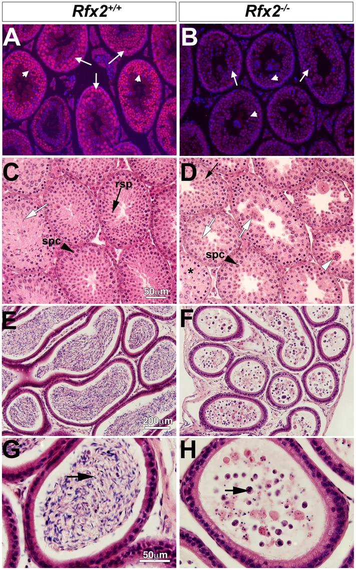 Spermatogenesis is arrested in <i>Rfx2</i><sup><i>-/-</i></sup> mice.