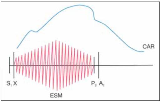 Schematická ilustrace fyzikálního nálezu u signifikantní stenózy aorty. Pomalu vzestupující karotický pulz s odloženým vrcholem s anakrotickým raménkem, ejekčním systolickým šelestem a reverzním rozštěpem 2. ozvy.