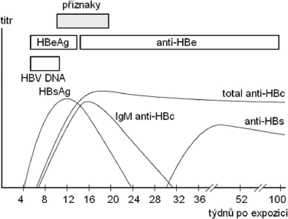 Markery u akutní hepatitidy B (podle Chalupa P.: Problematika akutních virových hepatitid)