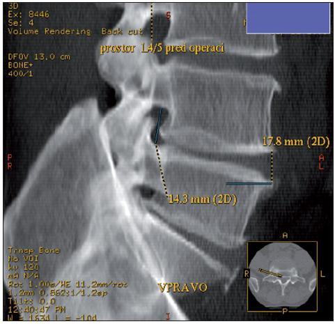 Obr. 2a. CT vyšetření – rekonstrukce VRT. Příklad měření výšky pravého foramen intervertebrale v prostoru L4/5 před operací. V pravém dolním rohu je kostka zobrazující rovinu a směr měření foramen intervertebrale. Muž, 45 let.