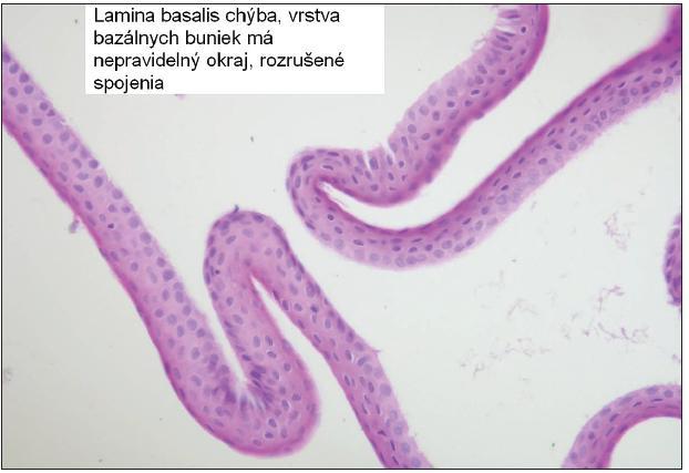 Obr. 2. Epiteliálny flap vytvorený s pomocou alkoholu, lamina basalis nie je prítomná