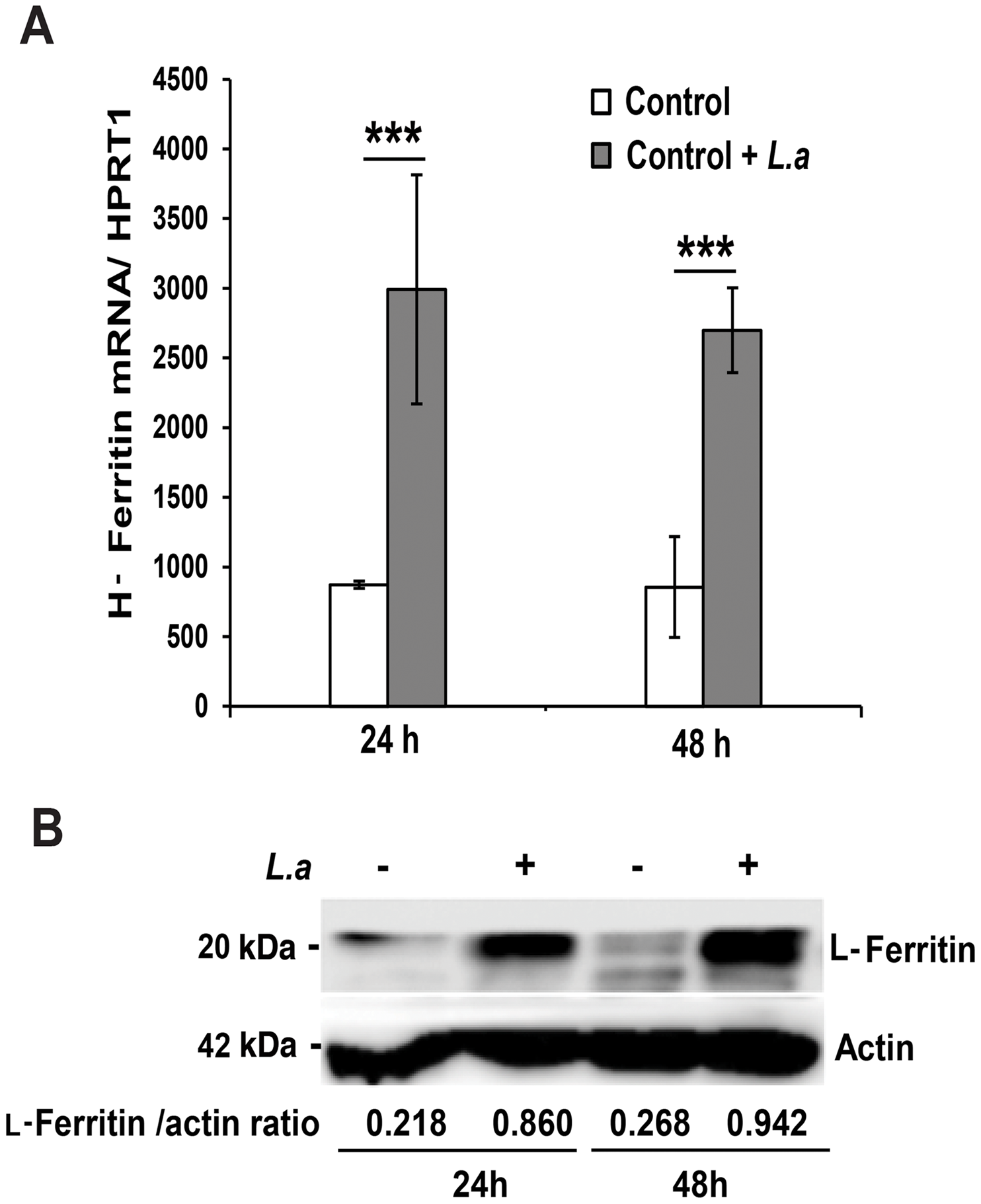 <i>L. amazonensis</i> infection causes iron accumulation and ferritin upregulation in macrophages.