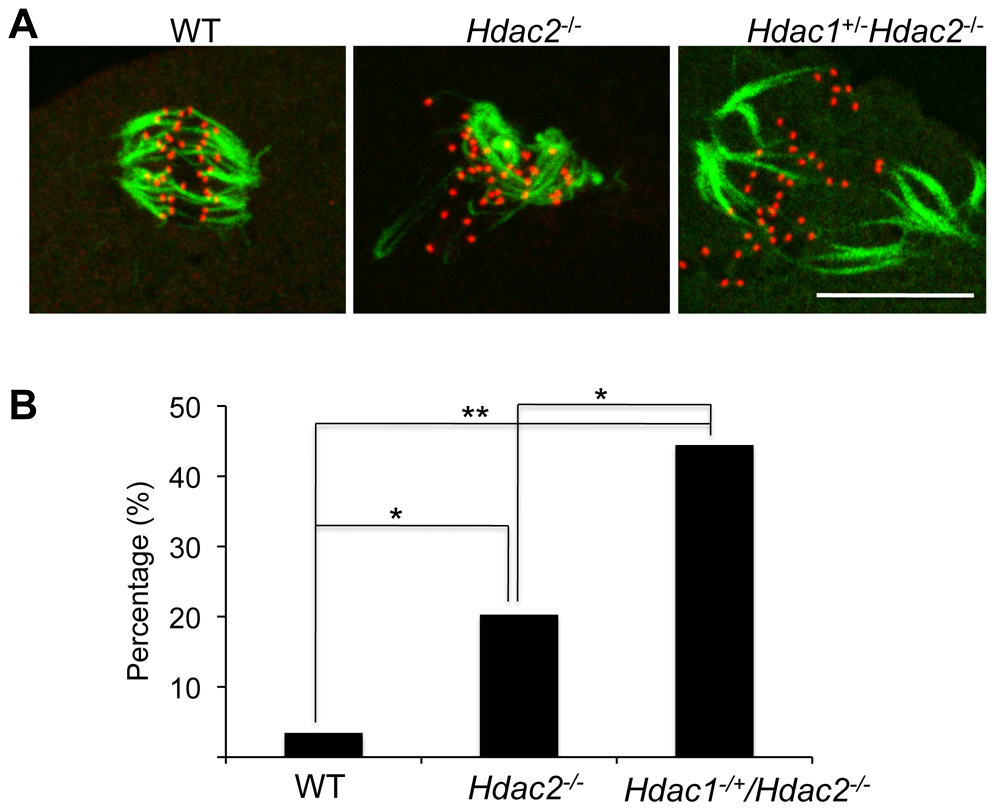 Loss of maternal HDAC2 impairs kinetochore-microtubule attachment in MI oocytes.
