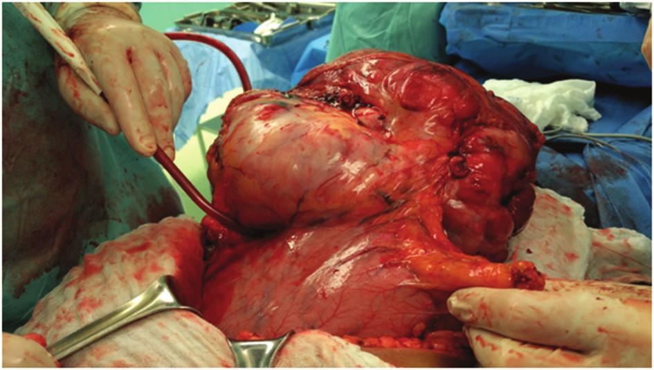 Oddělování tumoru od velké kurvatury žaludku Fig. 4: Separation of the tumor from the greater curvature of the stomach