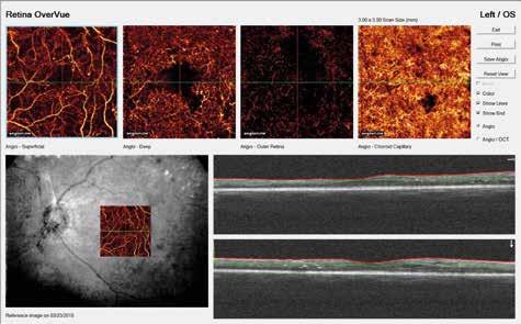 NPDR s patologickým rozšírením fyziologickej avaskulárnej zóny, preriednutím kapilár, intraretinálnymi mikrovaskulárnymi abnormalitami, nikroaneuryzmami, nonperfúznymi zónami a zmenami v choriokapilaris v softwérom prifarbenom zobrazení