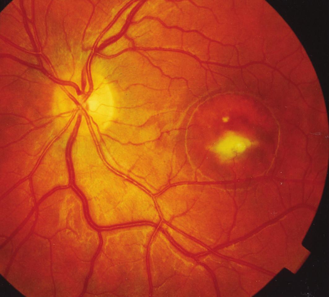 Konečné štádium ľavého oka 27-ročného pacienta IV/7