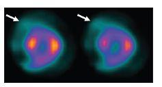 """Vybrané SA řezy ze studie, během níž došlo k vertikálnímu pohybu srdce; šipky ukazují """"ocas"""" radioaktivity šířící se od srdce (hurricane sign)."""