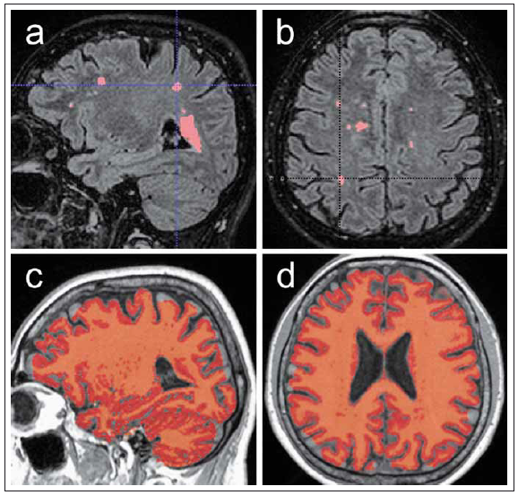 Ukázka automatizovaného měření objemu T2 hyperintenzních lézí a měření objemu celého mozku. Fig. 4. Demonstration of automated volume measurement of T2 hyperintense lesions and volume measurement of the entire brain.