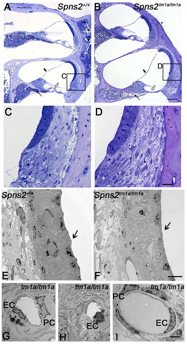 Pathological changes in stria vascularis and normal position of Reissner's membrane.