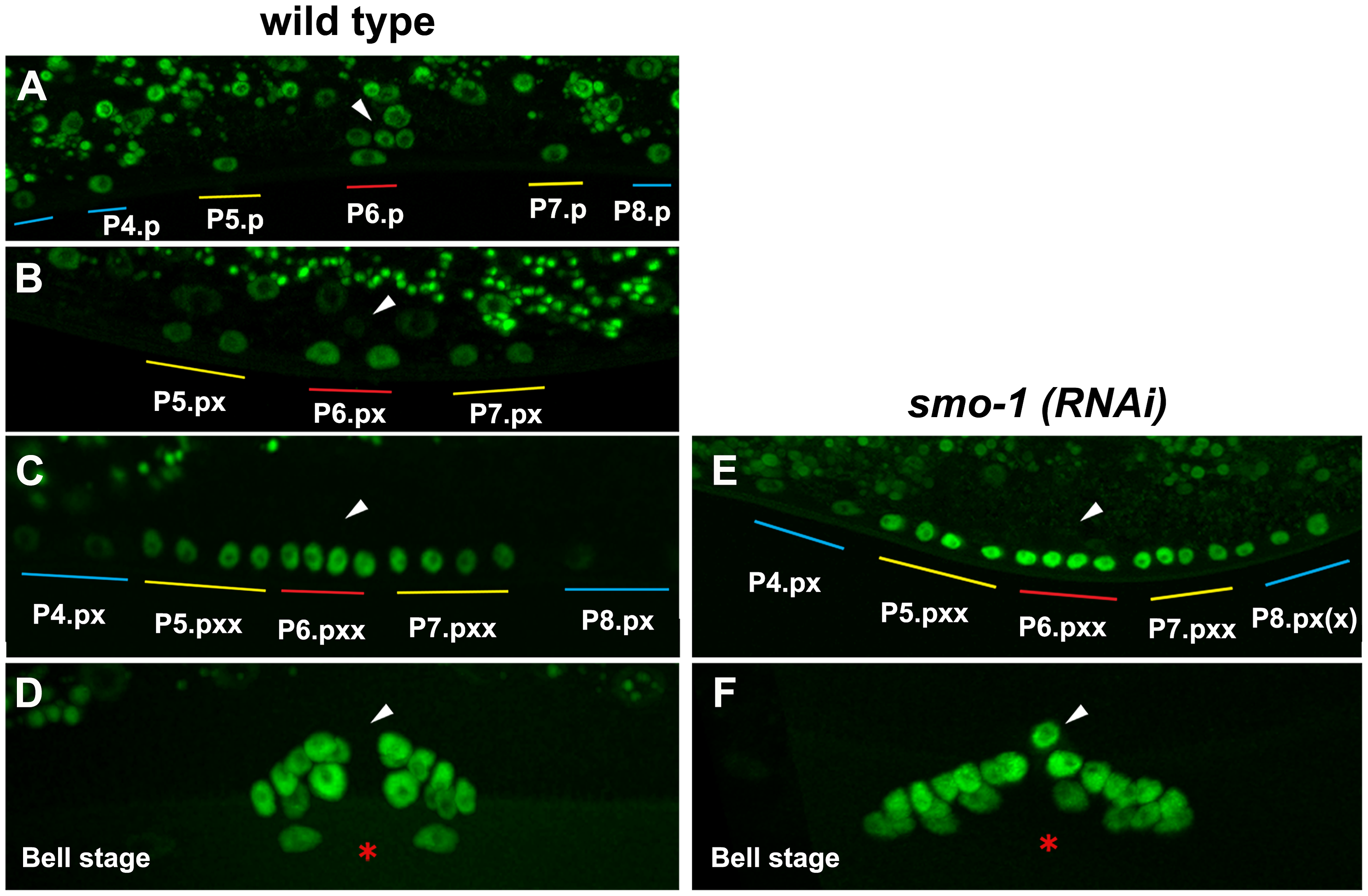 NHR-25::GFP (OP33) expression during vulval development.