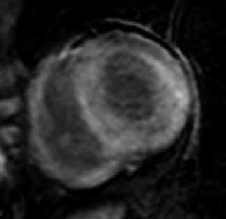 Difuzní, homogenní transmurální typ pozdního sycení kontrastní látkou (LGE) ve stěnách levé i pravé komory u nemocného s pokročilou amyloidovou kardiomyopatií;