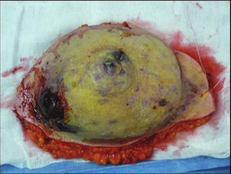Snesený prs s mnohočetnými uzly angiosarkomu