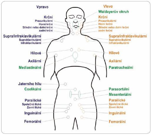 Schéma jednotlivých lymfatických oblastí (pro lymfomy vyjma folikulárních lymfomů).