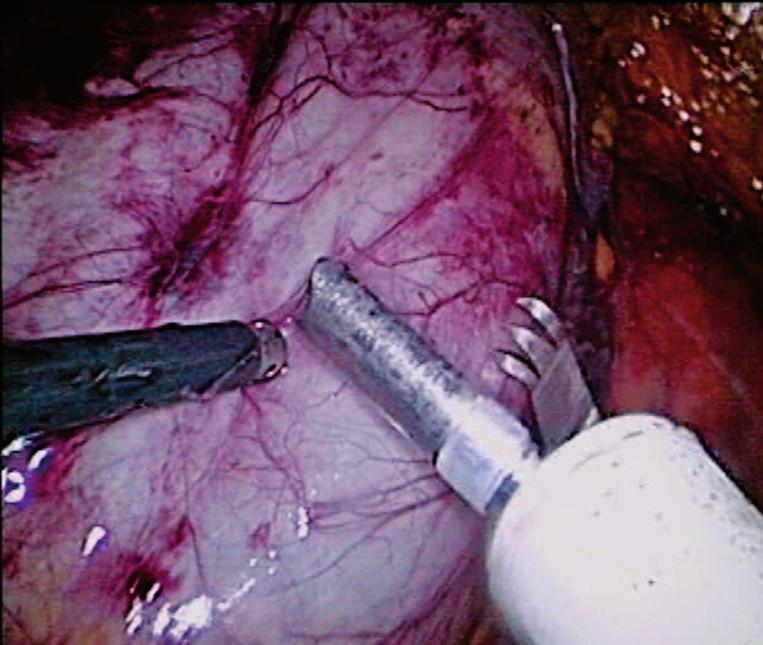 Obr. 4A,B. Bipolární morcelace ledviny