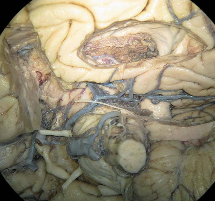 Pohled na námi disekovaný, formalínem fixovaný kadaverózní anatomický preparát – mediobazální temporální oblast zespodu. Je otevřen temporální roh postranní komory, resekován uncus a přední část temporálního laloku k Sylvijské rýze.
