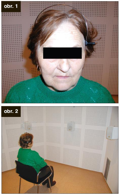 Obr. 1., obr. 2. Vyšetrenie pacienta s BAHA testerom vo voľnom poli.