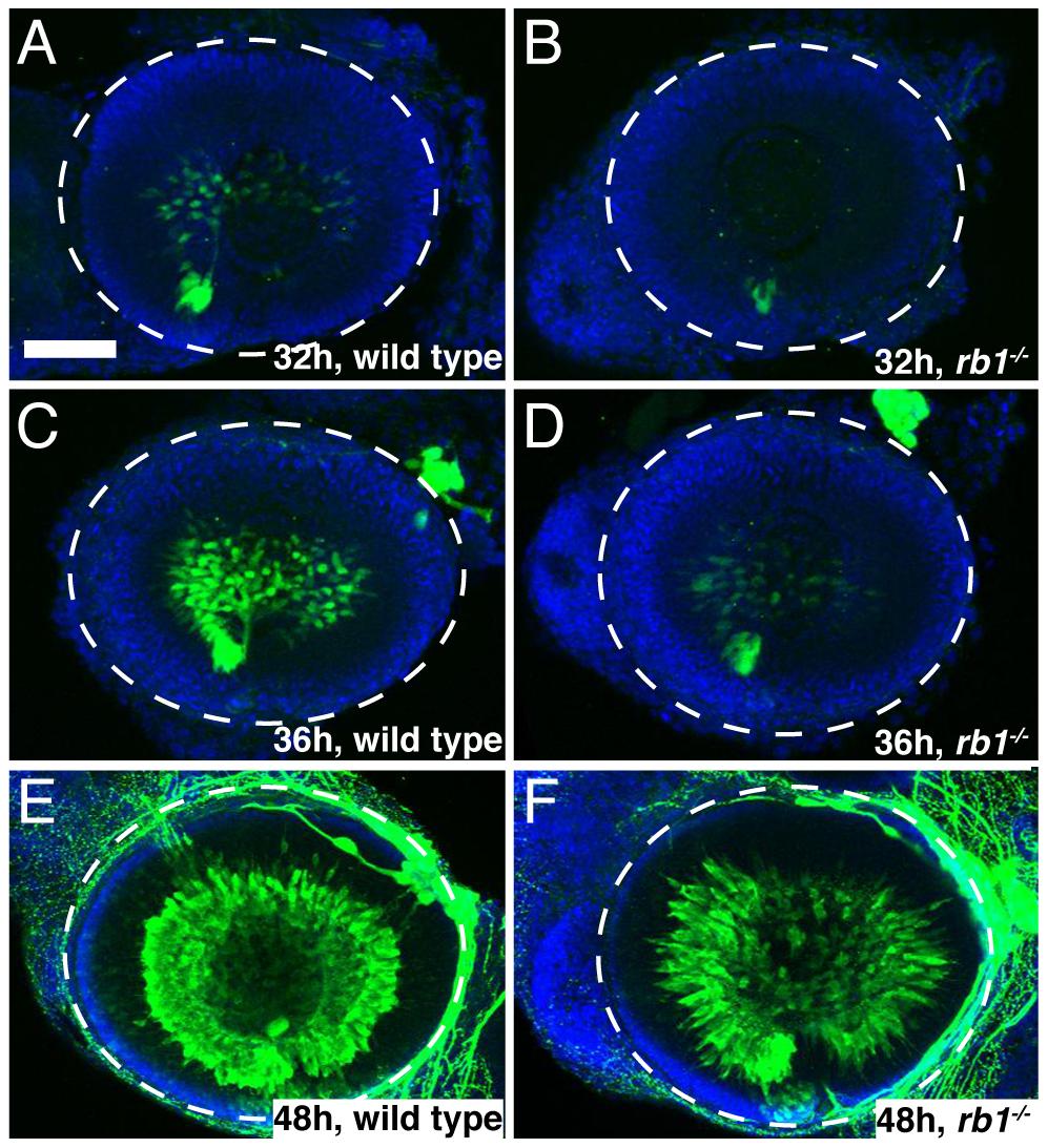 <i>rb1<sup>te226a</sup></i> retinas possess fewer postmitotic RGCs.