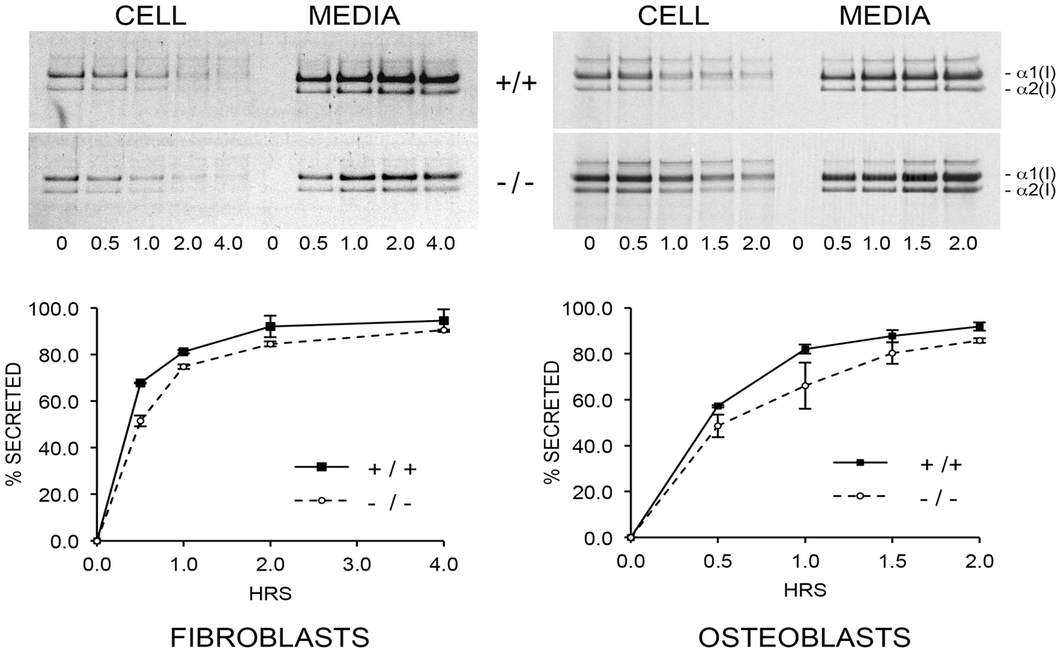 Pulse-chase analysis of type I collagen secretion.